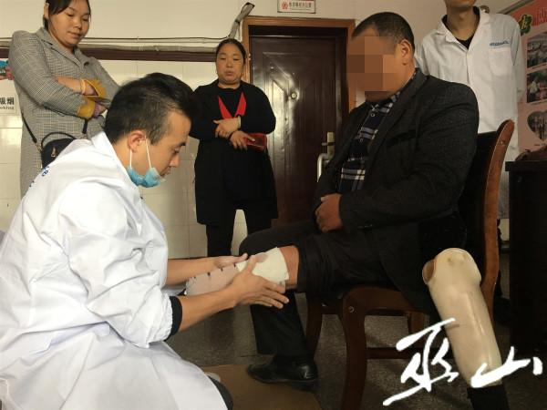 取模技师在为一肢残者取膜。.JPG